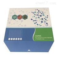 胰蛋白酶,人(trypsin)ELISA试剂盒免费代测