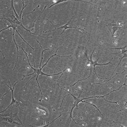 细胞爬片制作实验