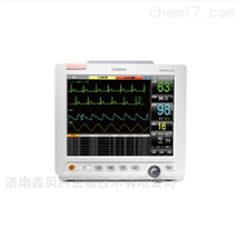STAR8000E心电监护仪