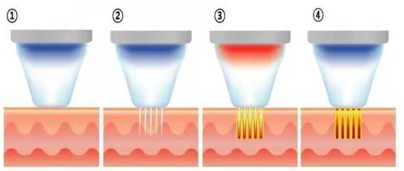 黄金射频微针的工作原理